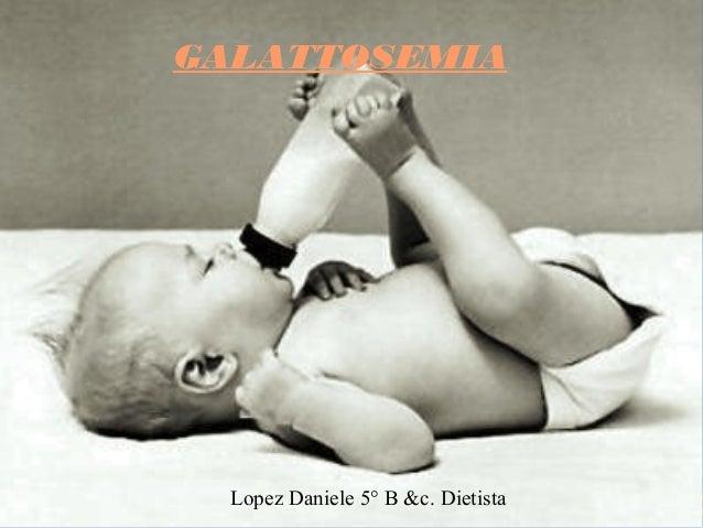GALATTOSEMIA  Lopez Daniele 5° B &c. Dietista