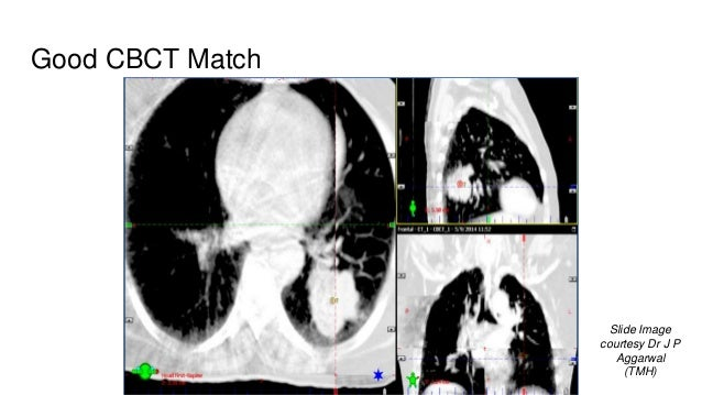 Good CBCT Match Slide Image courtesy Dr J P Aggarwal (TMH)