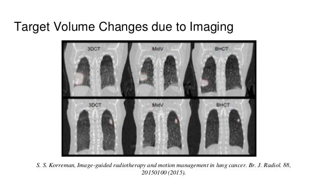 Target Volume Changes due to Imaging S. S. Korreman, Image-guided radiotherapy and motion management in lung cancer. Br. J...