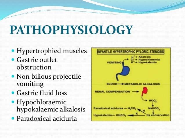 Infantile Hypertrophic Pyloric Stenosis