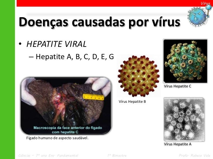 VírusDoenças causadas por vírus• HEPATITE VIRAL      – Hepatite A, B, C, D, E, G                                          ...