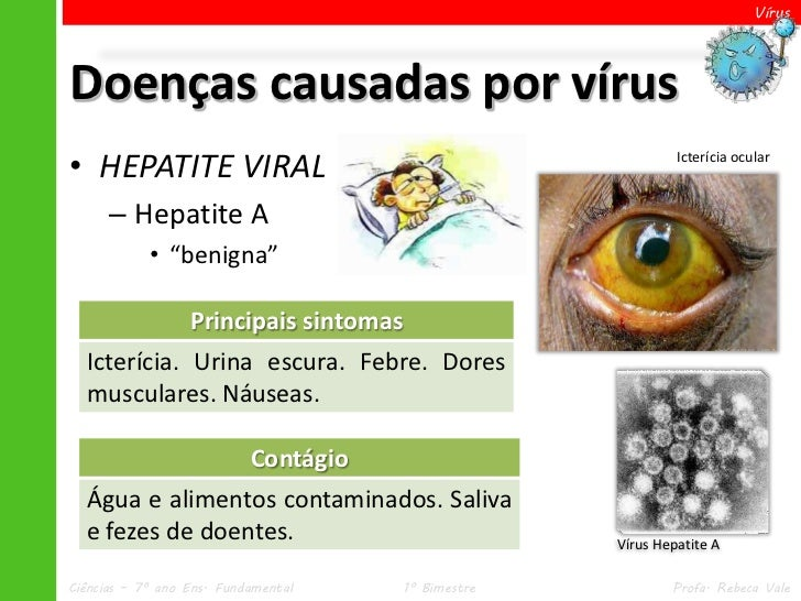 VírusDoenças causadas por vírus• HEPATITE VIRAL                                             Icterícia ocular      – Hepati...