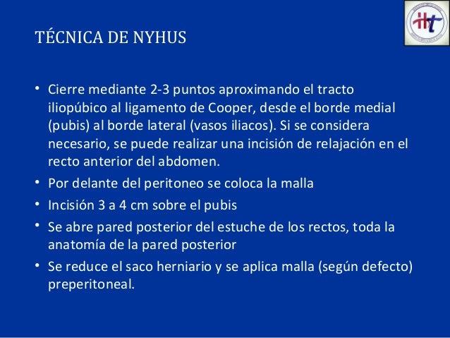 II hernia inguinal htca 2016 (1)