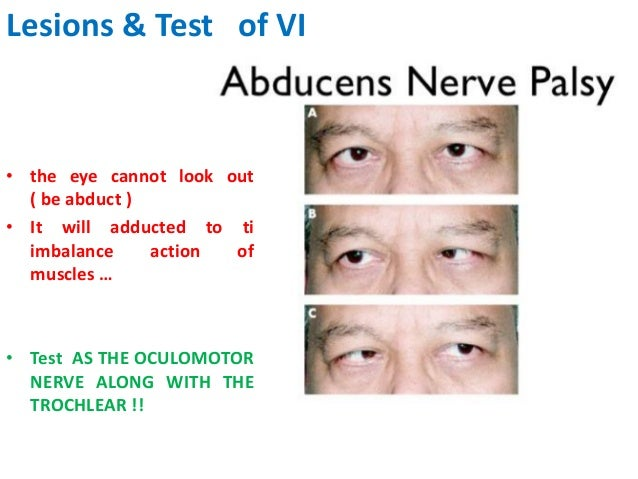 occulomotor iii trochlear iv amp abducent vi nerves