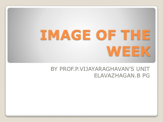 IMAGE OF THE WEEK BY PROF.P.VIJAYARAGHAVAN'S UNIT ELAVAZHAGAN.B PG