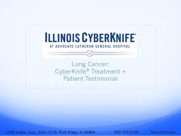 Lung Cancer: CyberKnife® Treatment + Patient Testimonial 1700 Luther Lane, Suite 1110, Park Ridge, IL 60068 847-723-0100 I...