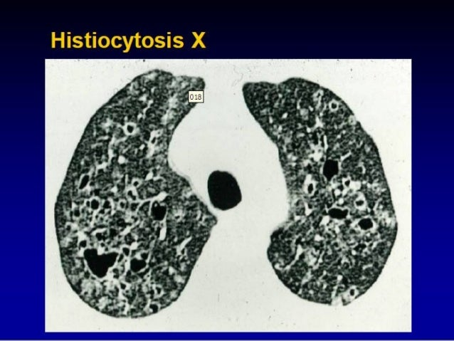 interstitial lung disease treatment guidelines