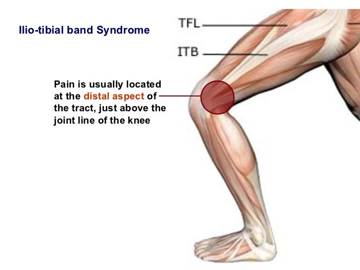 knee injury it band pictures to pin on pinterest pinsdaddy