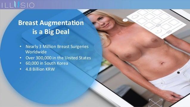 BreastAugmenta-on isaBigDeal • Nearly3MillionBreastSurgeries Worldwide • Over300,000intheUnitedStates...
