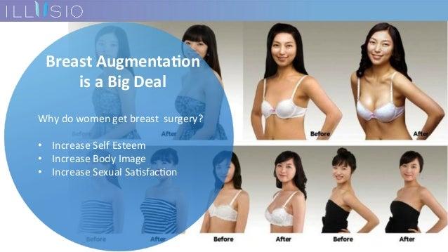 BreastAugmenta-on isaBigDeal Whydowomengetbreastsurgery?  • IncreaseSelfEsteem • IncreaseBodyImage ...