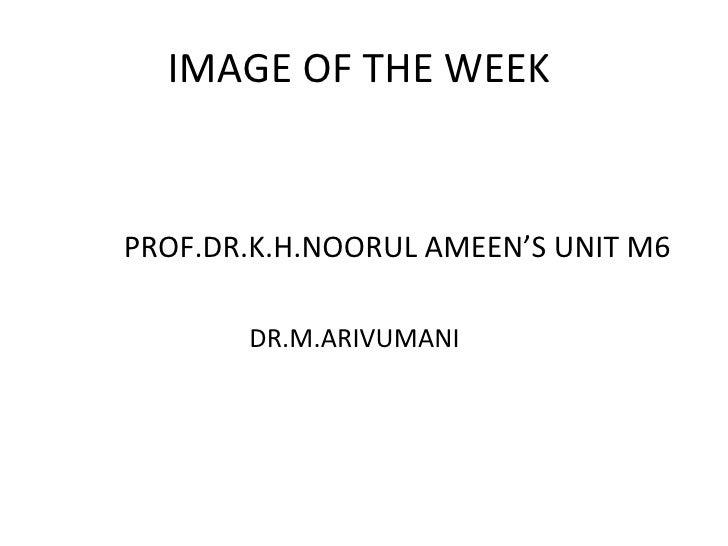 <ul><li>PROF.DR.K.H.NOORUL AMEEN'S UNIT M6 </li></ul><ul><li>DR.M.ARIVUMANI </li></ul>IMAGE OF THE WEEK