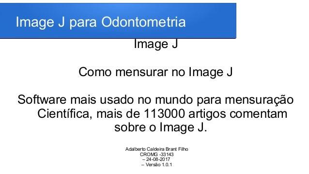 IMAGE J PARA ODONTOMETRIA - VERSÃO NOVA
