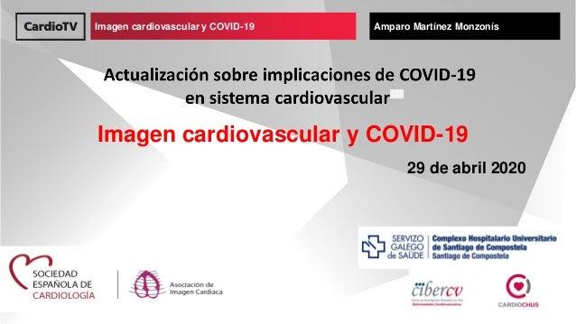 Imagen cardiovascular y COVID-19 Nombre de ponenteImagen cardiovascular y COVID-19 Amparo Mart�nez Monzon�s Imagen cardiov...
