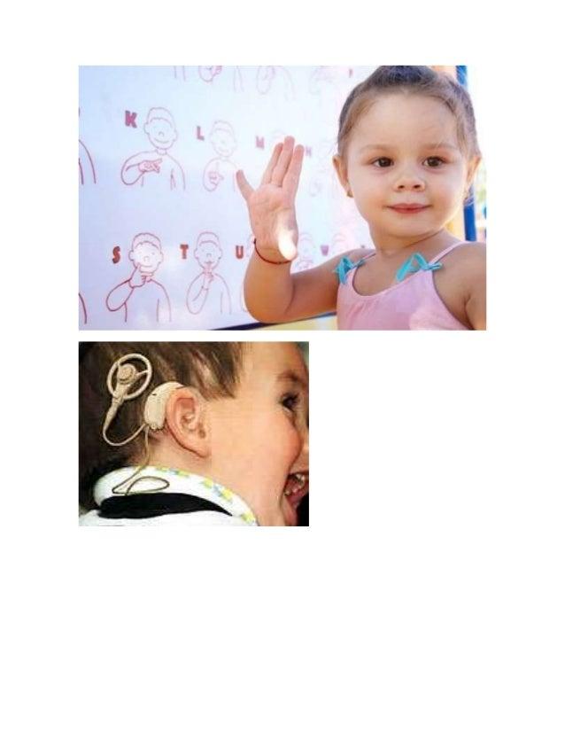 imágenes de niños sordos