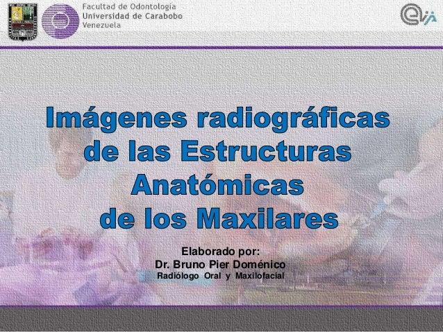 Elaborado por: Dr. Bruno Pier Doménico Radiólogo Oral y Maxilofacial