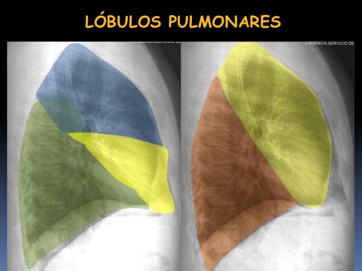 Contemporáneo Anatomía Pulmonar Del Lóbulo Foto - Anatomía de Las ...