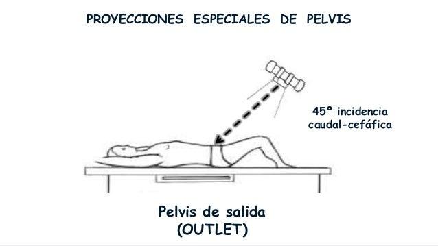 PROYECCIONES ESPECIALES DE PELVIS De entrada (Inlet) y de Salida (Outlet) Inlet                           Outlet