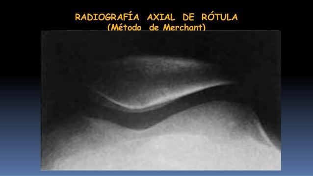 RADIOGRAFÍA LATERAL DE TOBILLO