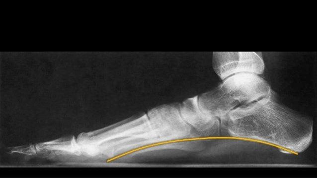 ESCANOGRAMA O MEDICION DE MIEMBROS INFERIORESEste estudio se pide para        medir   lasdismetrías óseas en los niños.Pri...