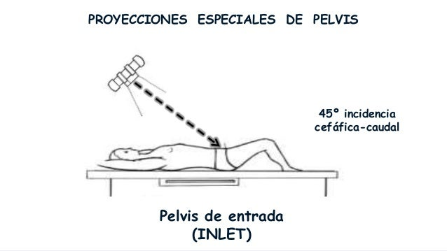 PROYECCIONES ESPECIALES DE PELVIS                            45º incidencia                           caudal-cefáfica     ...