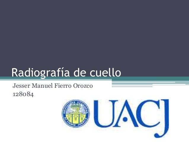 Radiografía de cuello  Jesser Manuel Fierro Orozco  128084