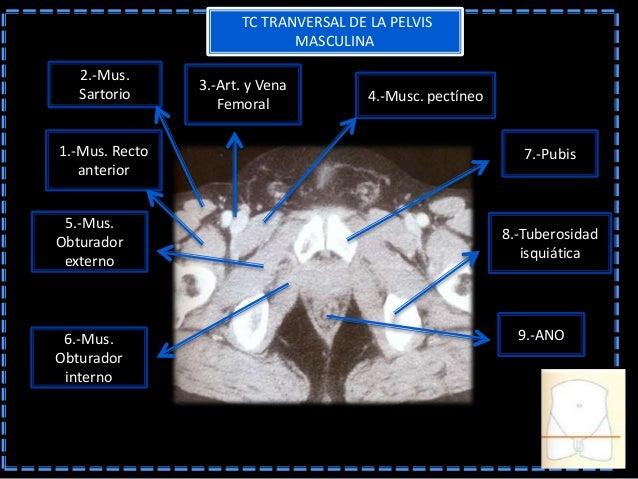Imagenologia pelvis