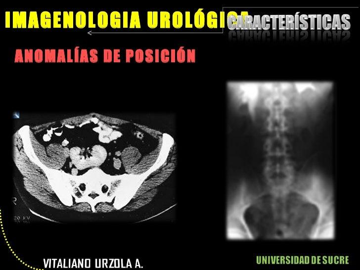 <ul><li>ANOMALÍAS DE POSICIÓN </li></ul>IMAGENOLOGIA UROLÓGICA
