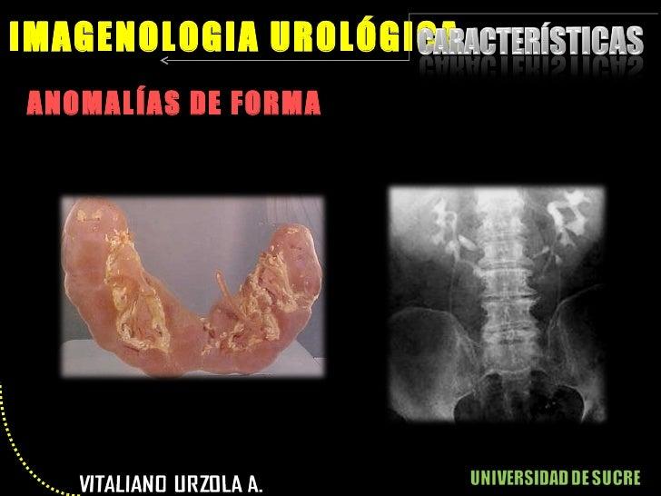 <ul><li>ANOMALÍAS DE FORMA </li></ul>IMAGENOLOGIA UROLÓGICA