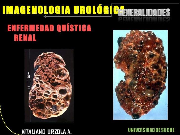 <ul><li>ENFERMEDAD QUÍSTICA RENAL </li></ul>IMAGENOLOGIA UROLÓGICA