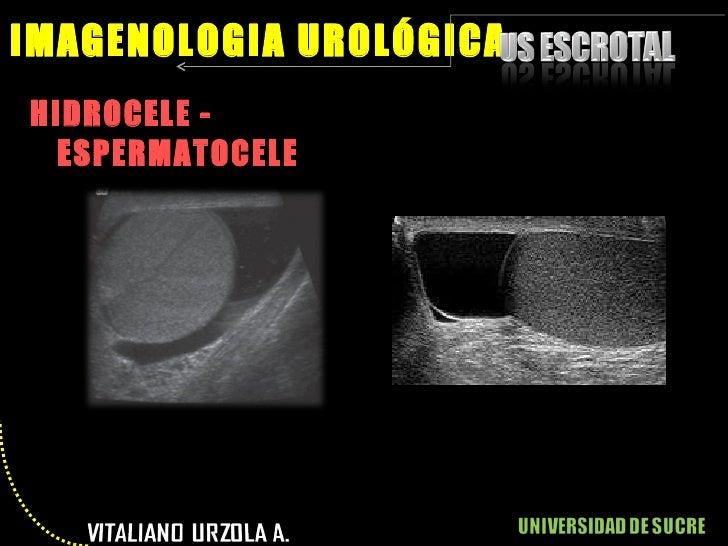 <ul><li>HIDROCELE - ESPERMATOCELE </li></ul>IMAGENOLOGIA UROLÓGICA