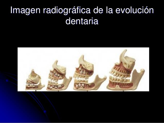 Imagen radiográfica de la evolución dentaria