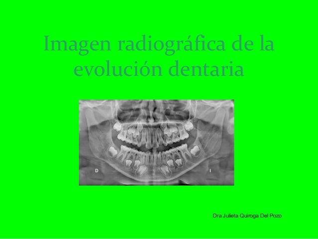 Imagen radiográfica de la evolución dentaria Dra Julieta Quiroga Del Pozo