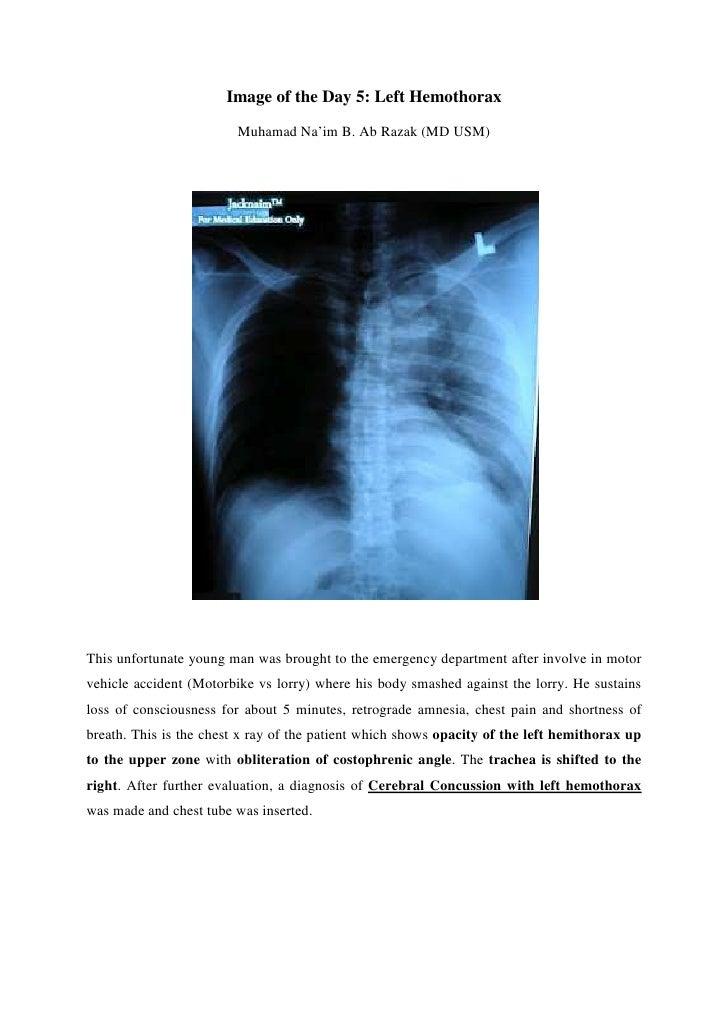 Image of the Day 5: Left Hemothorax                         Muhamad Na'im B. Ab Razak (MD USM)This unfortunate young man w...