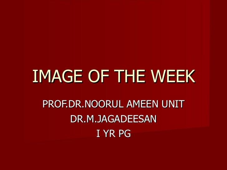 IMAGE OF THE WEEK PROF.DR.NOORUL AMEEN UNIT DR.M.JAGADEESAN I YR PG