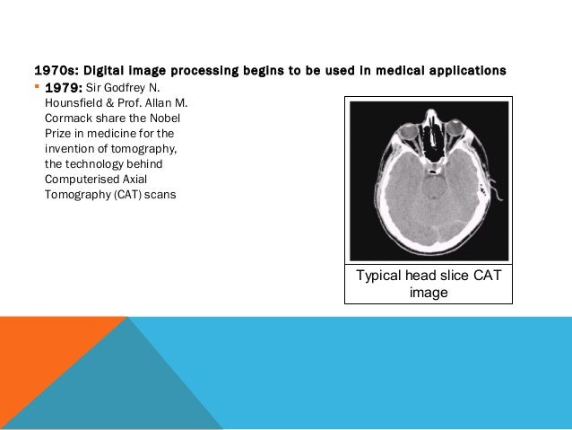 Intro To Cmptrs amp Digital Procing In Med Imag