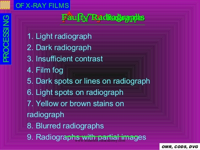 x ray image processing Teachers Manuals Stretch Teacher On Assignment Manual