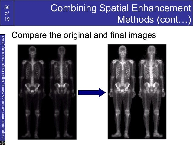 56of19Combining Spatial EnhancementMethods (cont…)Compare the original and final imagesImagestakenfromGonzalez&Woods,Digit...