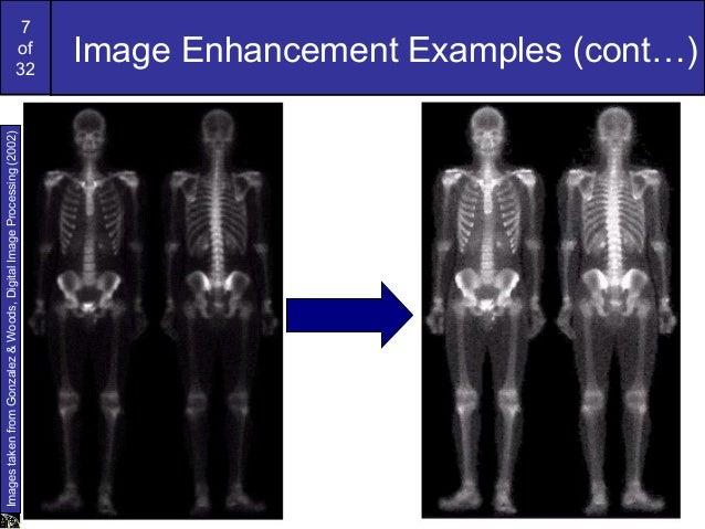 7of32Image Enhancement Examples (cont…)ImagestakenfromGonzalez&Woods,DigitalImageProcessing(2002)