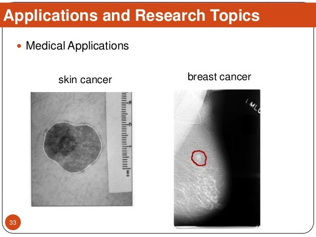  Medical Applications Applications and Research Topics breast cancerskin cancer 33