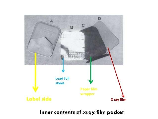 Image receptors dental crown bridge courses 8 lead foil sheet paper film wrapper x ray ccuart Image collections