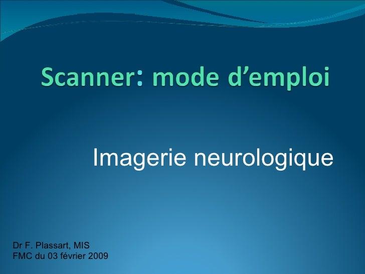 Imagerie neurologique Dr F. Plassart, MIS FMC du 03 février 2009