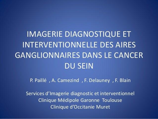 IMAGERIE DIAGNOSTIQUE ET INTERVENTIONNELLE DES AIRES GANGLIONNAIRES DANS LE CANCER DU SEIN P. Paillé , A. Camezind , F. De...