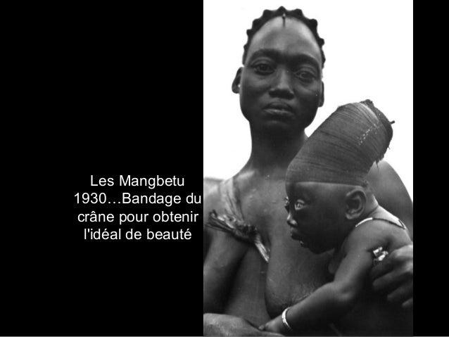 Les Mangbetu 1930…Bandage du crâne pour obtenir l'idéal de beauté