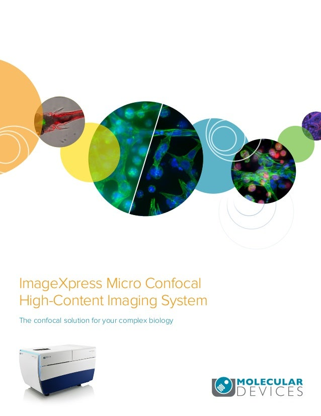 ImageXpress Micro Confocal High-Content Imaging System The confocal solution for your complex biology