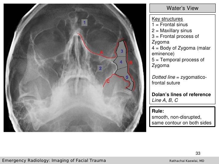 Ct skull base anatomy