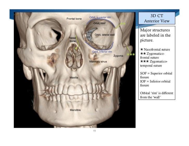 Facial Trauma | St. Petersburg FL | Fractures | Broken Facial Bones
