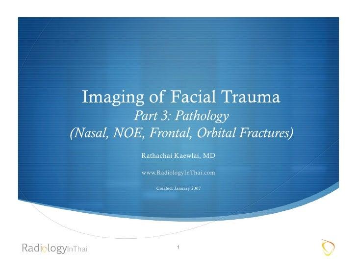 Imaging of Facial Trauma           Part 3: Pathology (Nasal, NOE, Frontal, Orbital Fractures)             Rathachai Kaewla...