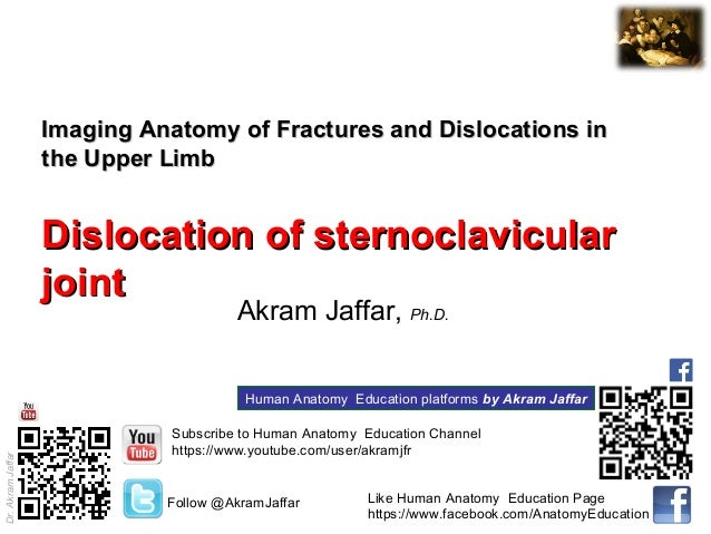 Dr.AkramJaffar Imaging Anatomy of Fractures and Dislocations inImaging Anatomy of Fractures and Dislocations in the Upper ...