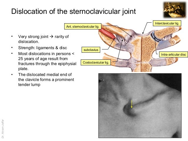 Imaging anatomy dislocation of sternoclavicular joint