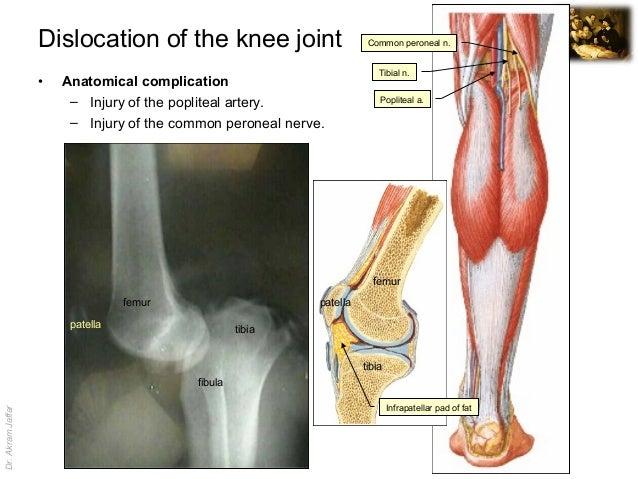 Imaging Anatomy Knee Injuries